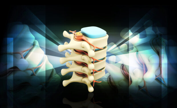 spinal cord stimulation graphic