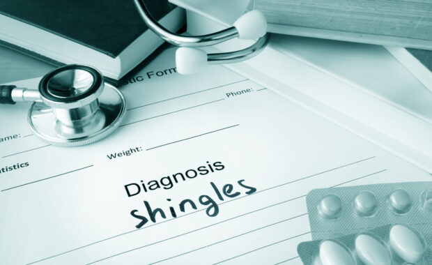 clipboard with shingles diagnosis