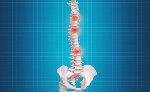 image of spine with degenerative disc disease