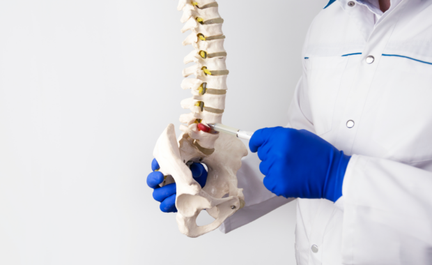 doctor with herniated disc spine model